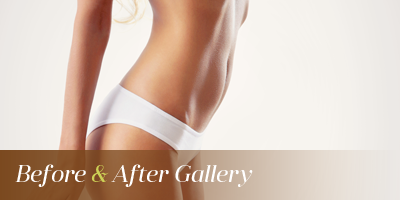 Laser Liposuction Seattle & Issaquah
