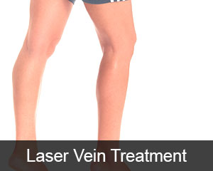 Laser Vein Treatment Seattle & Issaquah