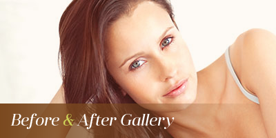 Lip Augmentation Seattle & Issaquah