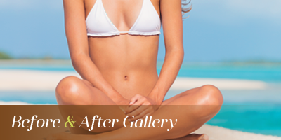 Smartlipo™ Seattle & Issaquah before and after