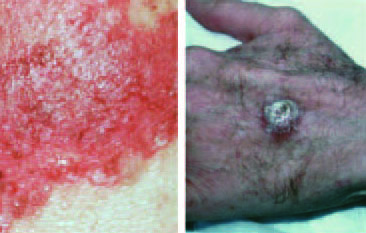 skin cancer Issaquah Squamous Cell