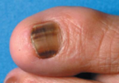 Acral Lentiginous Melanoma Symptoms Doctor Heck
