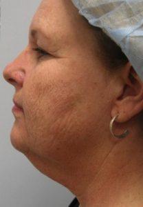 Nick Liposuction & Laser Resurfacing Before