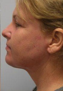 Nick Liposuction & Laser Resurfacing After Results