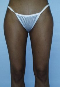 Thigh Liposuction After Results