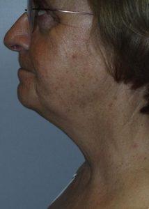 SmartLipo Laser Liposuction Chin Before