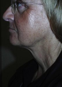 SmartLipo Laser Liposuction Chin After Results
