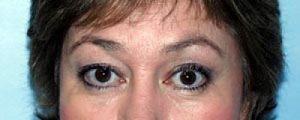 Botox After Brow