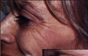 Botox Before Wrinkles