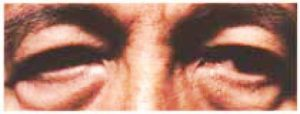 Eyelid Surgery - Upper Blepharoplasty Before Male Patient