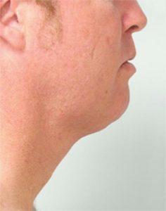 Nick Liposuction Before