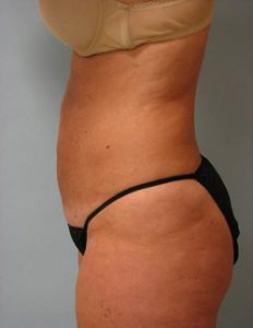 Abdomen Liposuction After