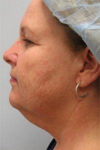Skin Rejuvenation CO2 Laser Resurfacing Before