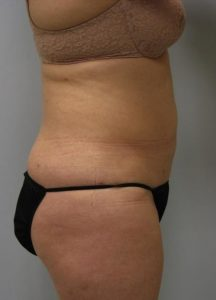 Belly Liposuction After