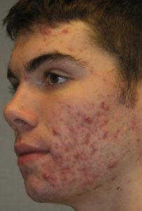 Non-Surgical - Acne Treatment in Seattle Before