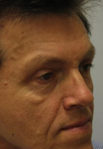 Eyelid Surgery - Upper Blepharoplasty After Male Patient