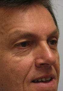 Eyelid Surgery - Upper Blepharoplasty Before on Male Patient