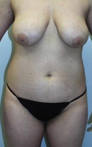Liposuction - Breast Reduction After Results