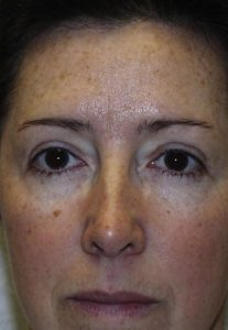 Eyelid Surgery - Upper Blepharoplasty After