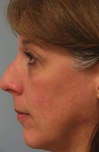 Skin Rejuvenation CO2 Laser Resurfacing After