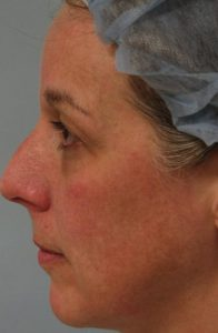 Skin Rejuvenation CO2 Laser Resurfacing Before