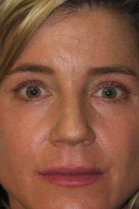 Eyelid Surgery - Upper Blepharoplasty Before After