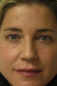 Eyelid Surgery - Upper Blepharoplasty Before