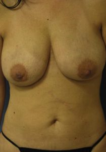 Liposuction - Breast Reduction Before Results