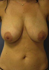 Liposuction - Breast Reduction Before
