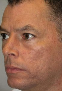 Fraxel Laser Resurfacing After