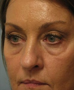 Eyelid Surgery - Upper Blepharoplasty Before