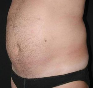 Non-Surgical - UltraShape Before Seattle Male Patient