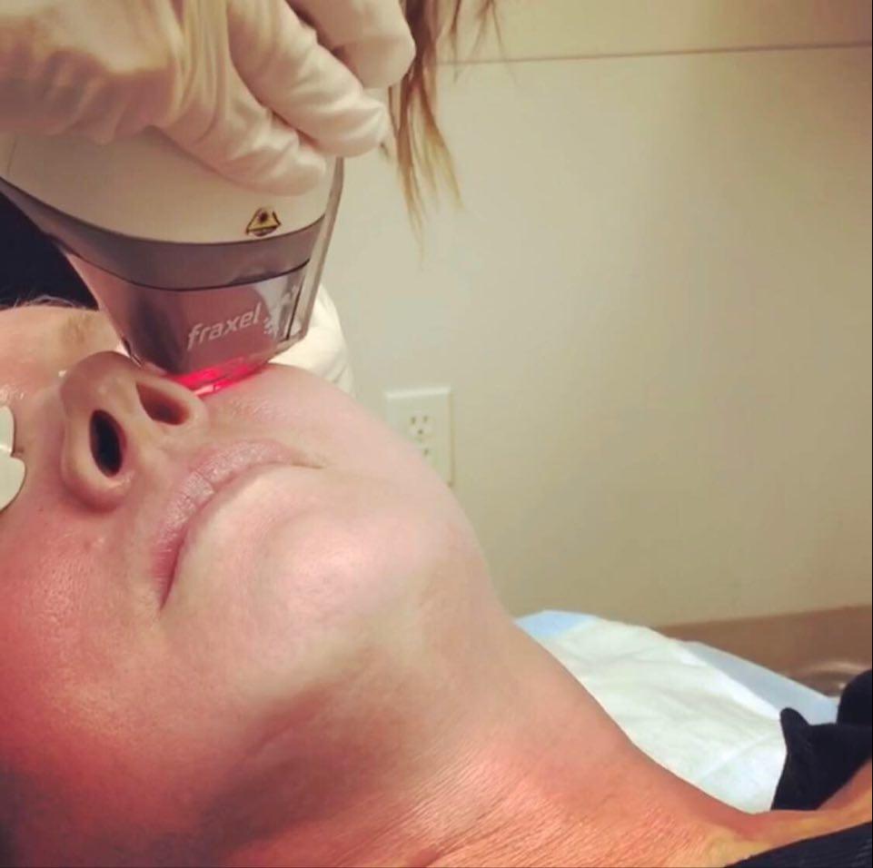 Fraxel Laser for skin rejuvenation