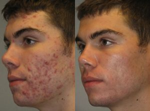 Amazing Acne Treatment Transformation: Before & After 1