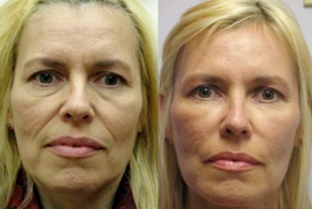 Turning Back Time with Botox: Before & After 3