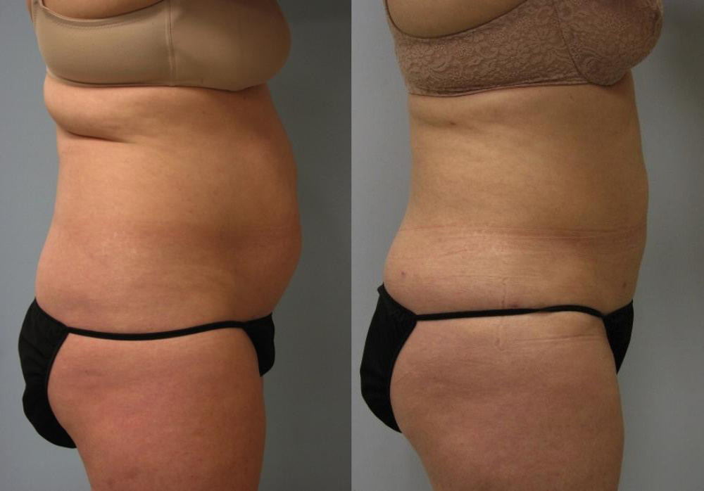 UltraShape Body Contouring: Before & After 1