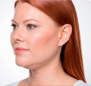Non-Surgical - Kybella Before