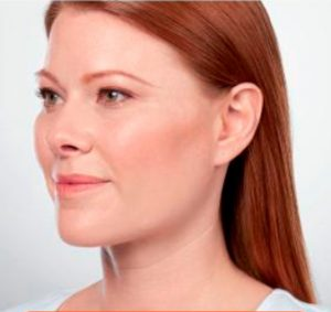 Non-Surgical - Kybella After