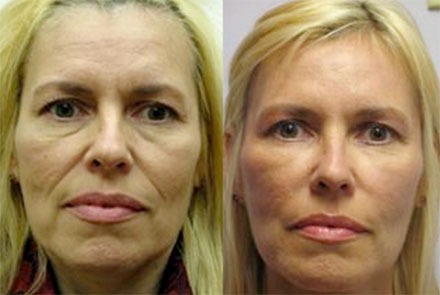 Botox Results in Issaquah WA