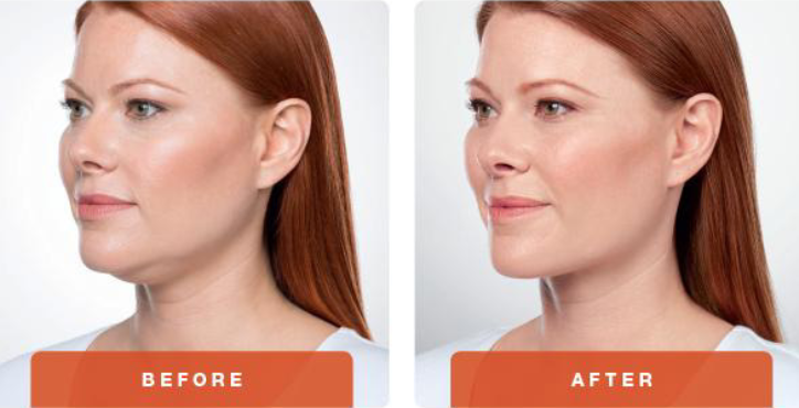 Kybella Chin Reduction Treatment: Before & After