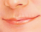 injectable_fillers-4