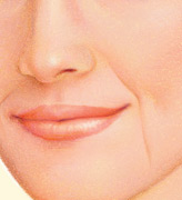 injectable_fillers-2