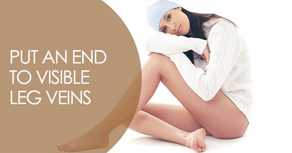 Get Beautiful Legs with a Spider Vein Treatment